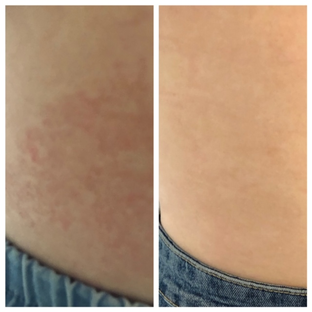Rash 2 weeks before and after dietary & nutritional changes at VitalYou